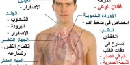 فقر الدم... أسبابه وكيفية علاجه