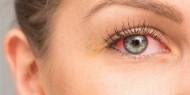 هل العين تشير إلى المشكلات الصحية في الجسم؟؟