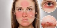 حساسية الوجه.. المسببات وطرق العلاج