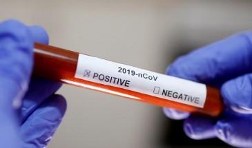تسجيل 3 إصابات بفيروس كورونا بمخيم الرشيدية في لبنان