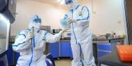 الصحة: وفاة مواطنة من الخليل متأثرة بإصابتها بفيروس كورونا