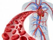 انسداد شرايين القلب ... الأسباب وطرق العلاج