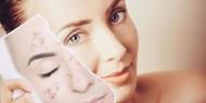 تصبغات الجلد: أسباب وطرق العلاج الطبيعية
