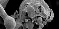 طبيب مصري يحذر من عادة يومية تؤدي لانتقال الفطر الأسود للجسم