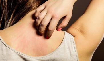 مرض التينيا الجلدي.. الأسباب وطرق العلاج